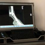 Röntgen Detektorsystem